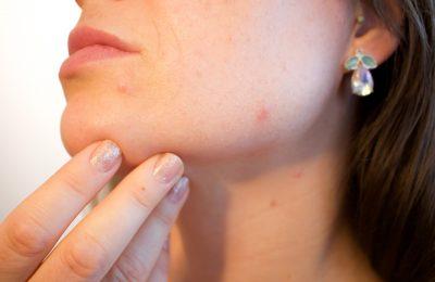 2019-06-24-CBG ulje suzbija poremećaje kože