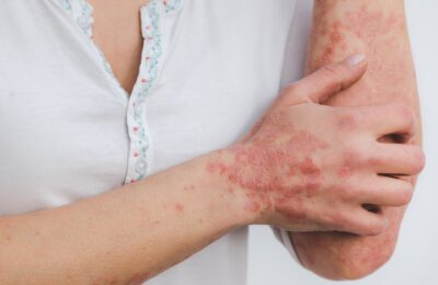 2021-07-20-Kan CBD Mensen Met Psoriasis Helpen Om Verlichting Te Vinden?